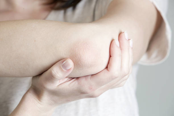 winterizing dry itchy skin on the elbow area - human limb stock pictures, royalty-free photos & images