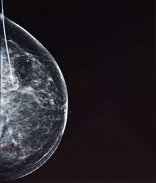 Wire Guided (Needle) Localization of Breast Cancer stock photo