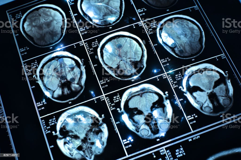 wire on brain medical x-ray stock photo