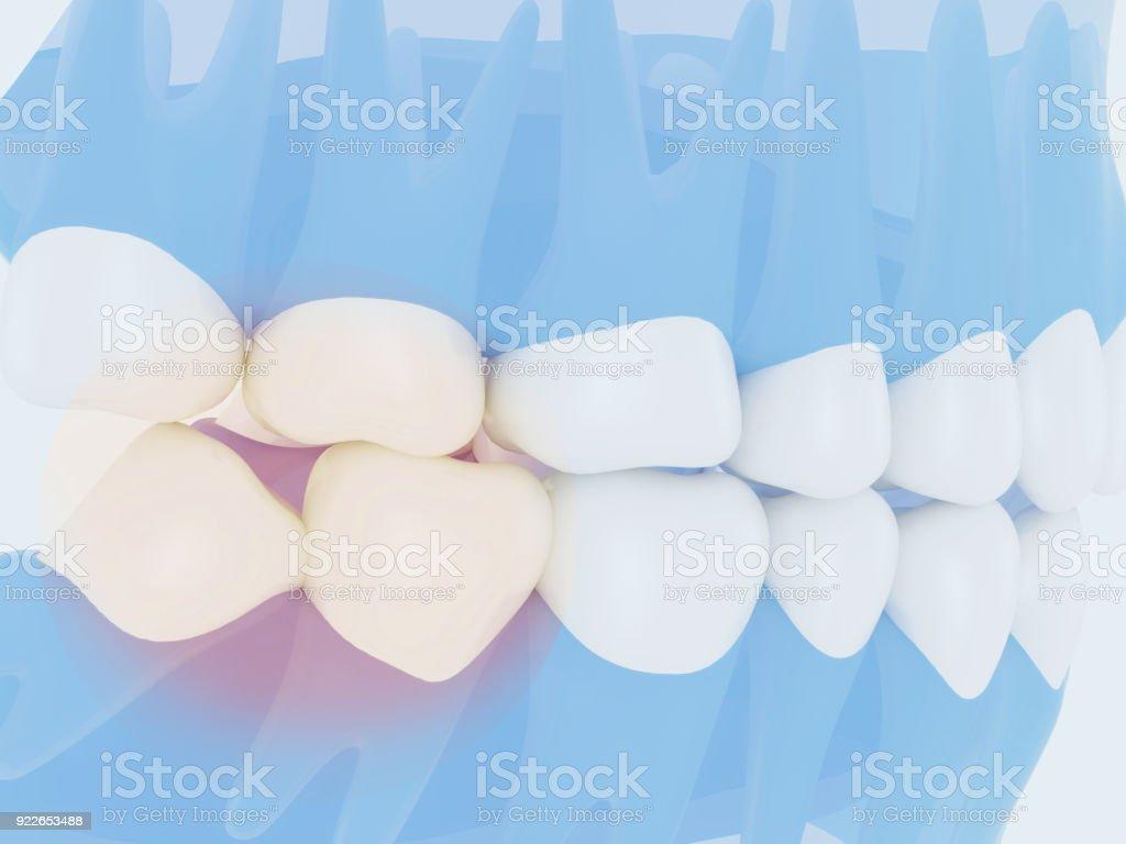 dientes de la sabiduría - foto de stock
