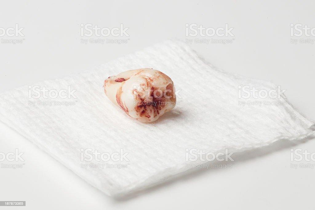 Weisheit Zahn Stock-Fotografie und mehr Bilder von Anatomie   iStock