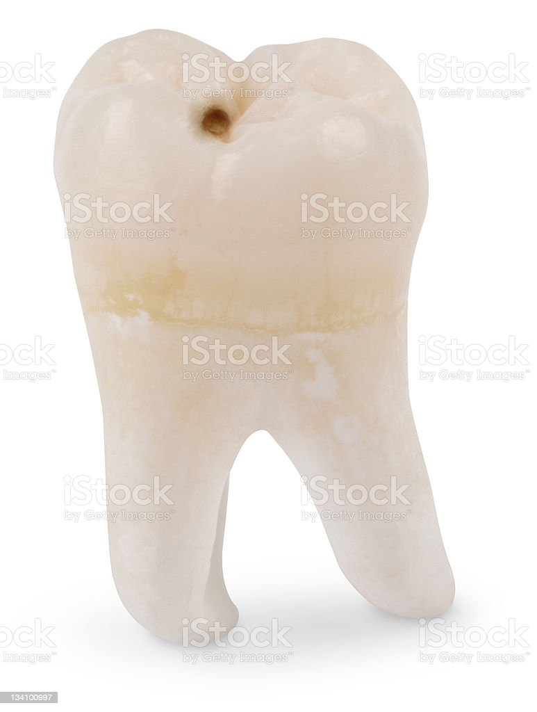 Wisdom Tooth with Cavity stock photo