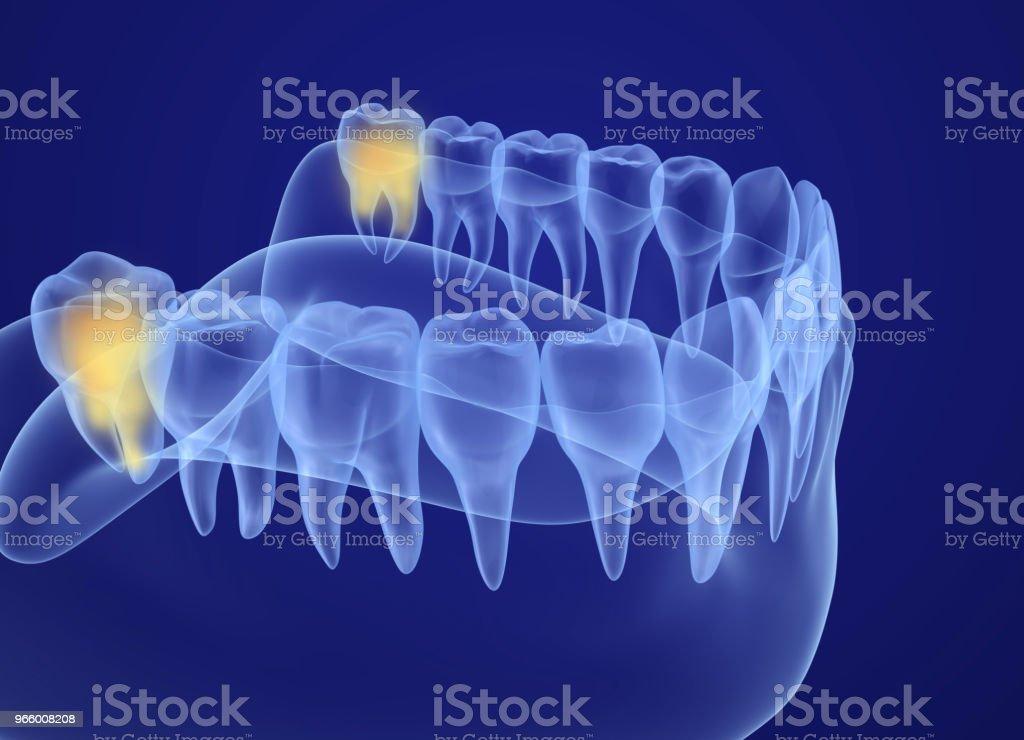 Visdomstand xray Visa. Medicinskt korrekt tand 3D illustration - Royaltyfri Anatomi Bildbanksbilder