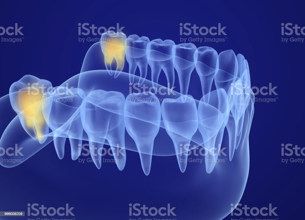 Wisdom tooth xray view. Medically accurate tooth 3D illustration stock photo