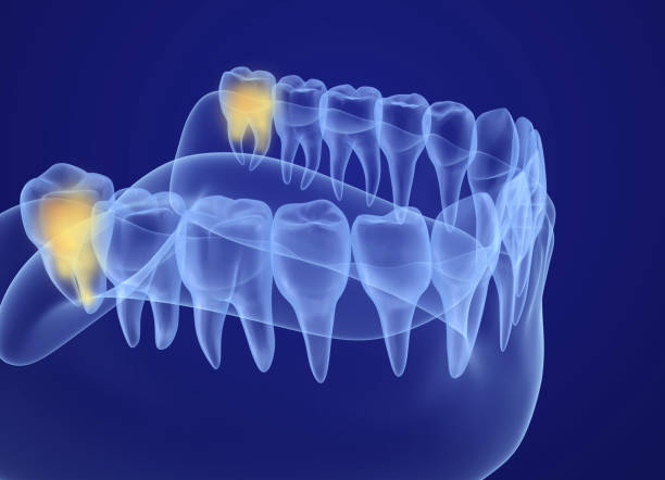 wisdom tooth xray view. medically accurate tooth 3d illustration - wisdom stock pictures, royalty-free photos & images