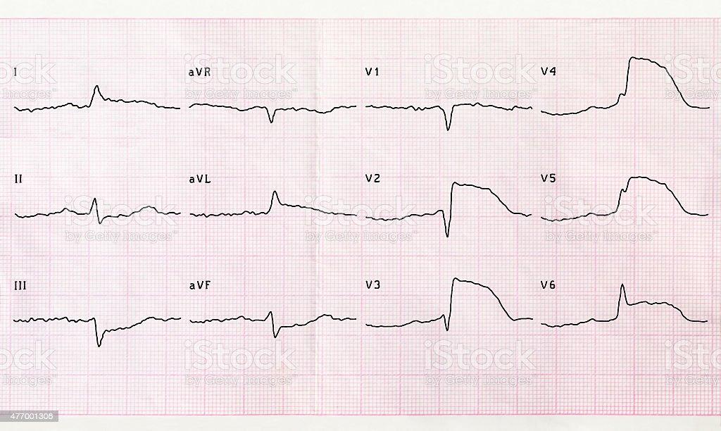 ECG with acute period macrofocal anterior myocardial infarction stock photo