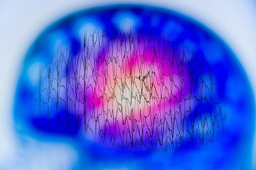 istock EEG with electrical activity of abnormal brain, electroencephalogram,EEG 963398112
