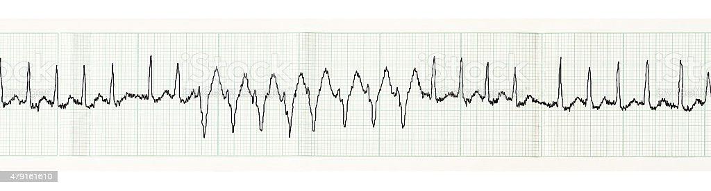 ECG with paroxysm of atrial fibrillation stock photo