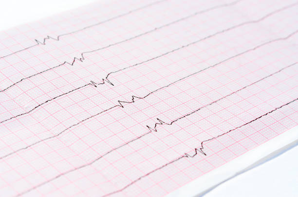 "ecg with single ventricular complexes and ventricular asystole (""dying heart"") - graphic print stock photos and pictures"