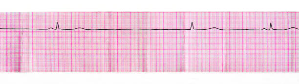ECG with stop of sinus node (