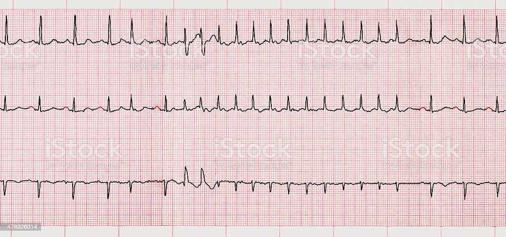 ECG with supraventricular arrhythmias and short paroxysm of atrial fibrillation stock photo