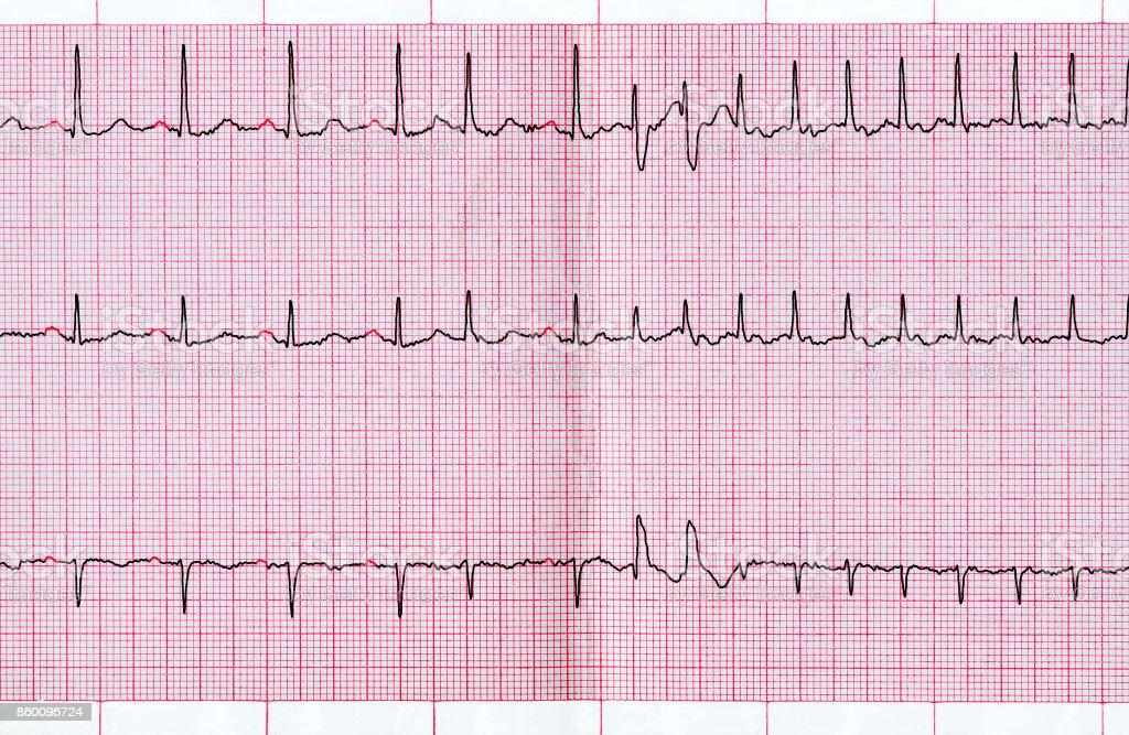 ECG com extrassistolia supraventricular e curto paroxismo da fibrilação atrial - foto de acervo