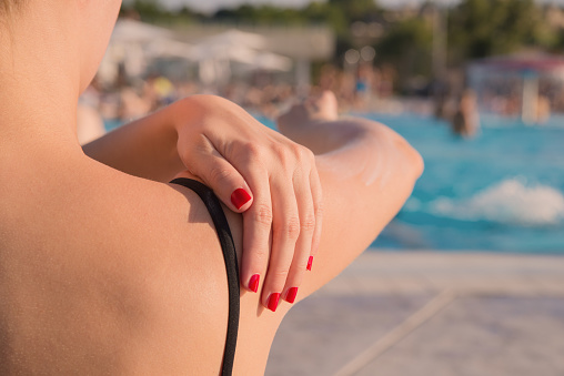 514258424 istock photo Woman applying sunblock protection on shoulders by the pool 586701532