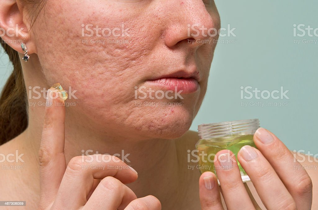 Woman applying topical gel to acne scars stock photo