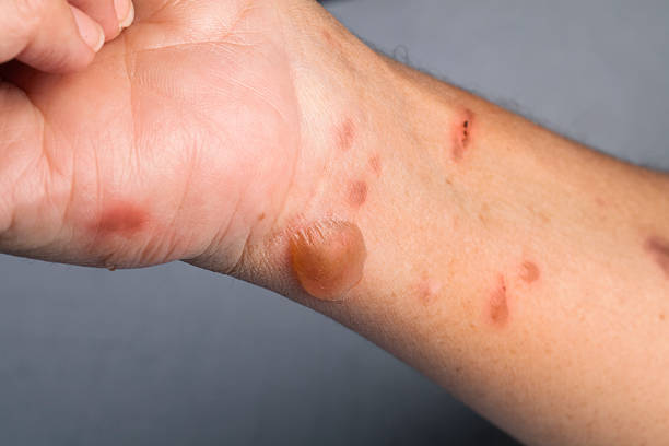 Woman arm with actual second degree burn stock photo