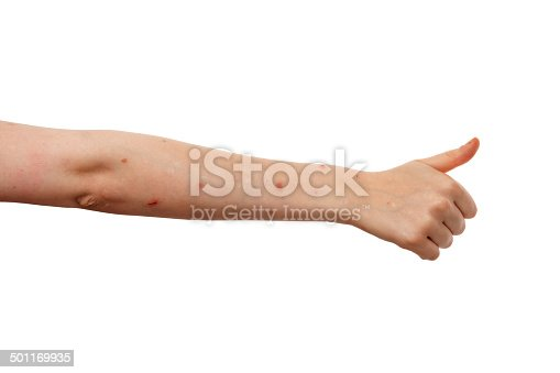 istock Woman arm with Psoriasis on white background 501169935