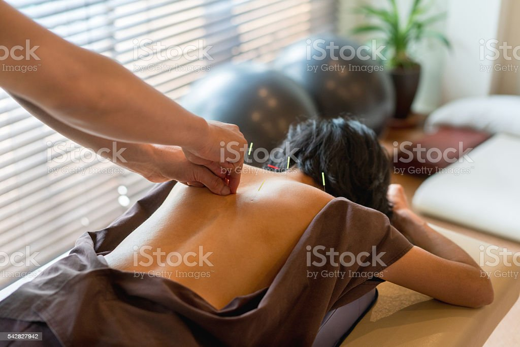 Woman at the acupuncturist stock photo