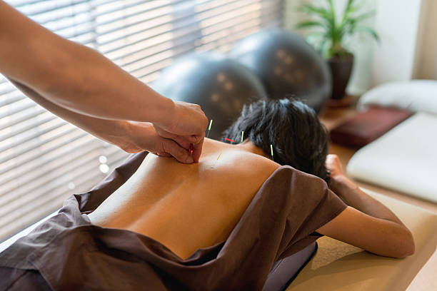 woman at the acupuncturist - holistic medicine stock photos and pictures