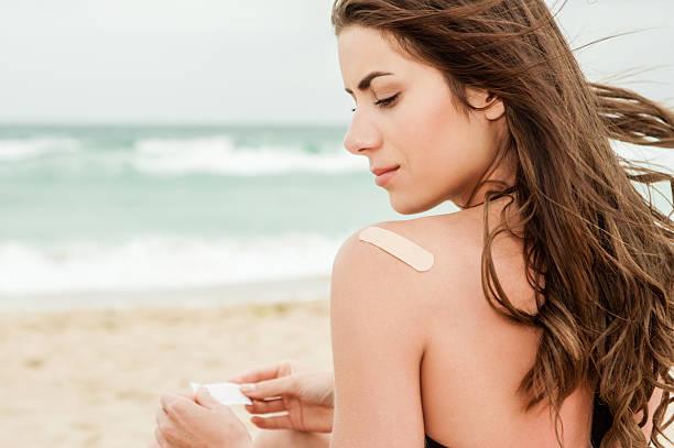 frau am strand mit einem auf bandage - sonnenbrand heilen stock-fotos und bilder