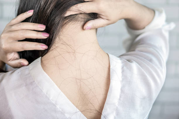 woman back with problem hair loss falling on neck and shoulder - plecy człowieka zdjęcia i obrazy z banku zdjęć