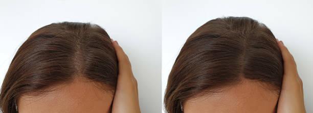 vrouw kaalheid haar voor en na de behandeling - hair grow cyclus stockfoto's en -beelden