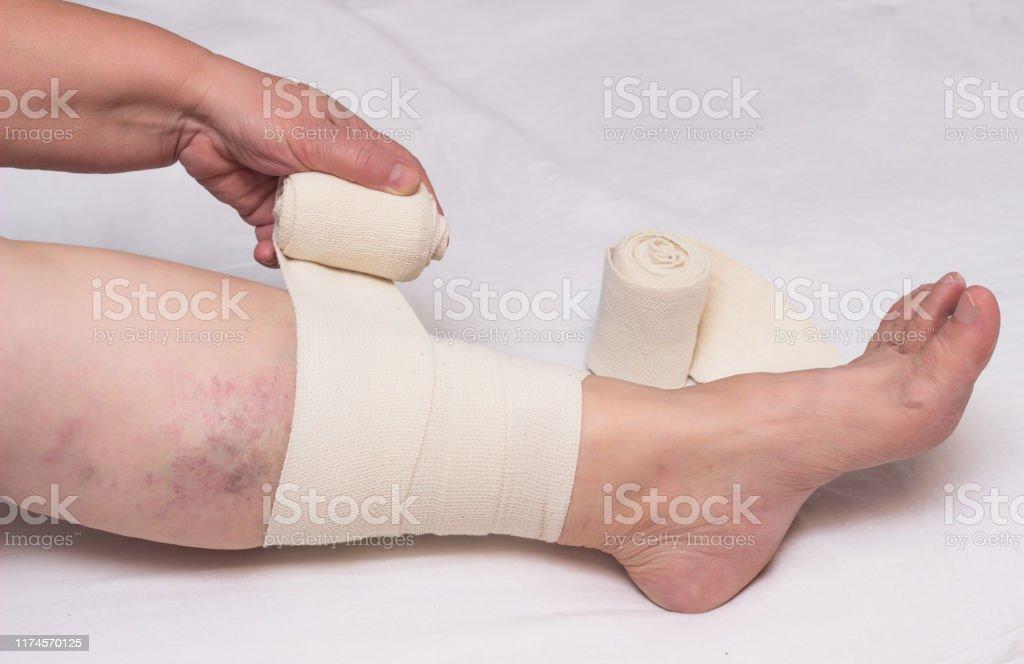 Woman Bandages Leg With Elastic Bandage Against Varicose Veins On