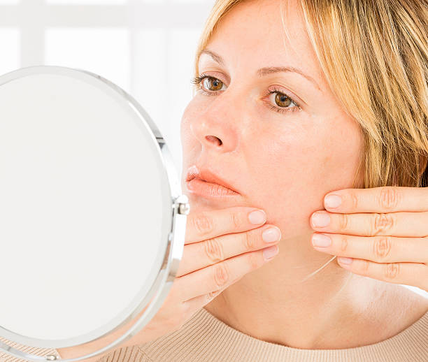 Woman, beauty and acne. stock photo