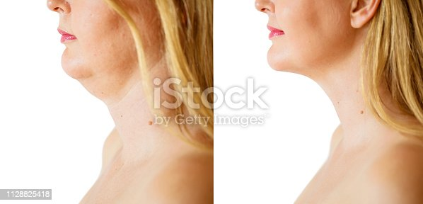 Caucasian ethnicity female before and after chin fat correction procedure