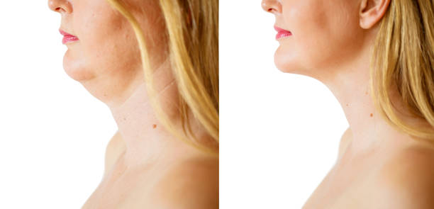 woman before and after chin fat correction procedure - animal body part stock pictures, royalty-free photos & images