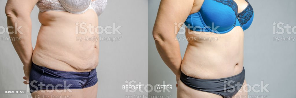 Woman Before And After Her Abdominoplasty And Liposuction