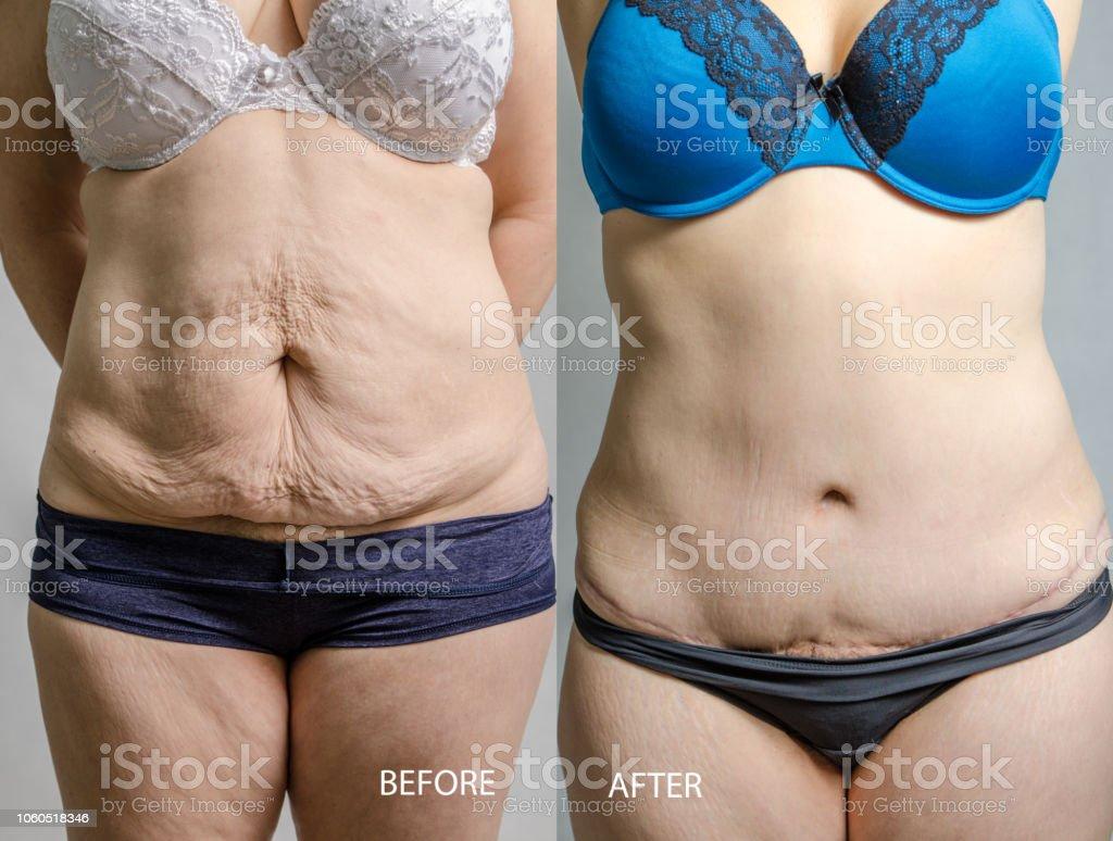Mujer antes y después de su abdominoplastia y liposucción - foto de stock