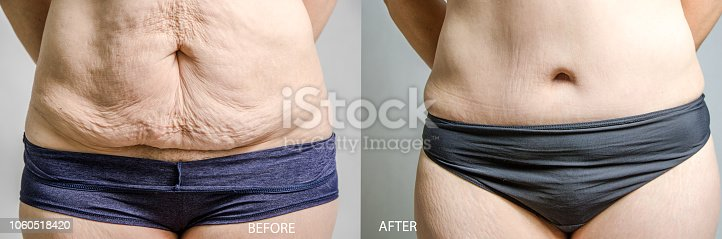 Woman before and after her abdominoplasty and liposuction  Note to inspector: Those two pictures were taken on 2018-03-04 and 2018-10-27 and combined together. I put the two model releases in file.