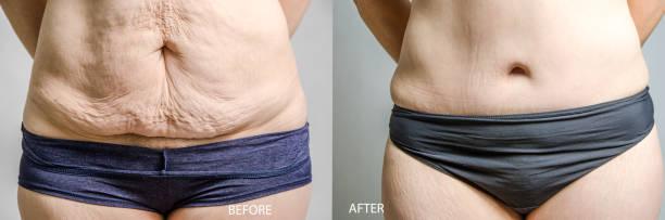 Frau vor und nach ihrer Bauchstraffung und Fettabsaugung – Foto