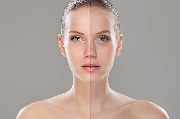 A woman before and after retouching