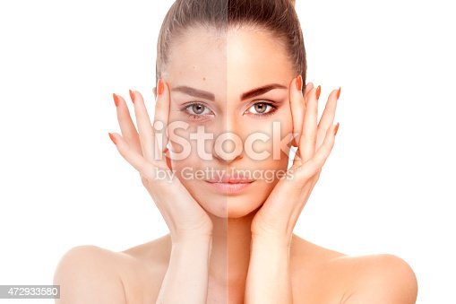 Close-up of a woman face divided in two parts - no retouch with red skin and acne and good beauty retouch.