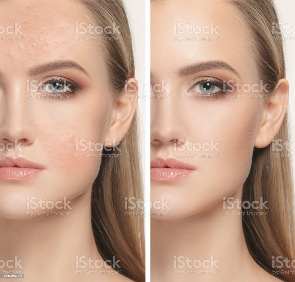 Woman before and after treatment stock photo
