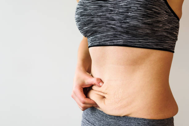 woman belly after dieting - human abdomen stock pictures, royalty-free photos & images