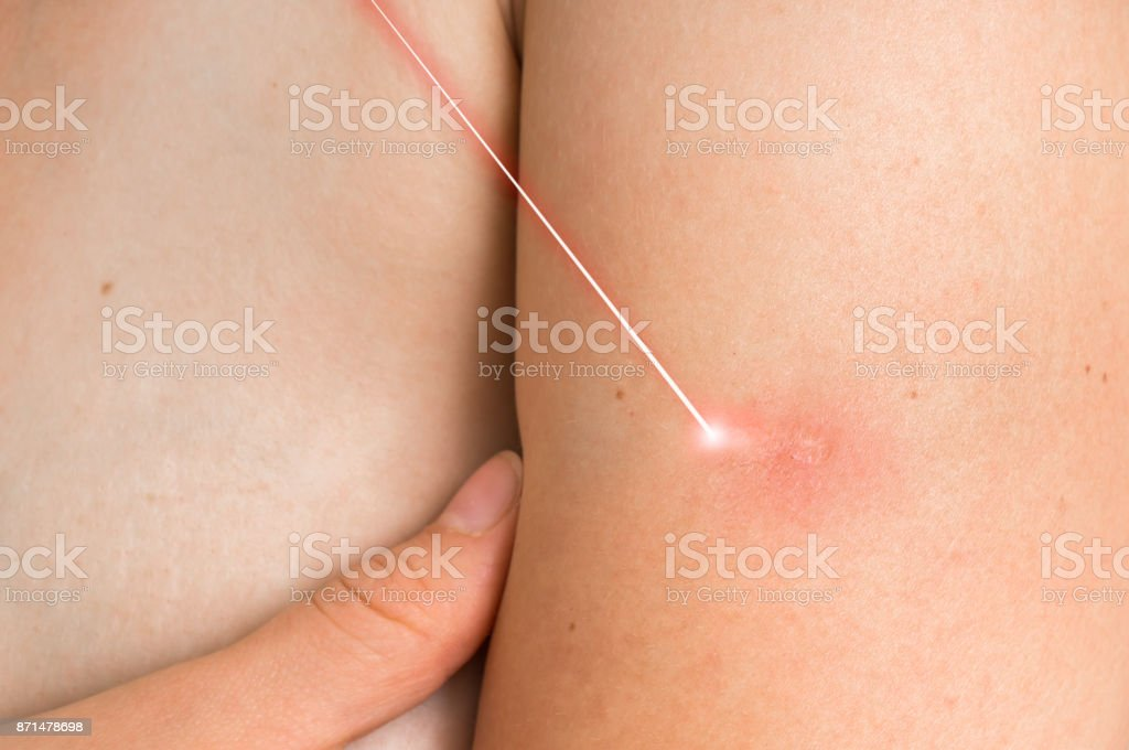 Woman body and laser surgery stock photo