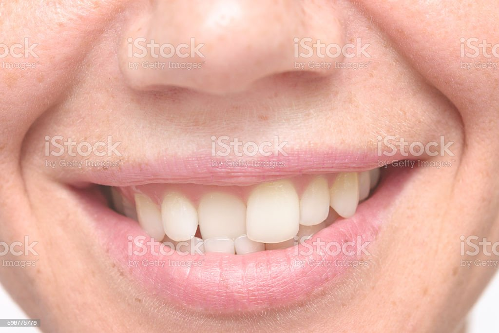 woman crooked teeth stock photo