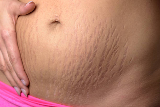 Woman displaying stretch marks after pregnancy bildbanksfoto