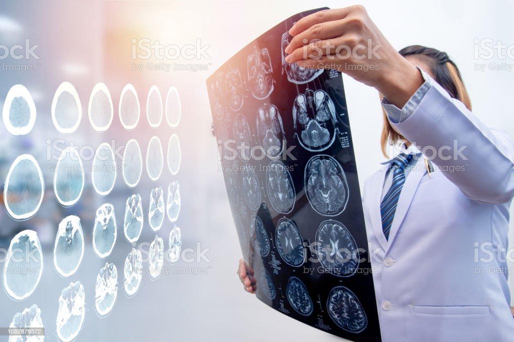 woman doctor holding MRI film to diagnosis injury area of brain stock photo