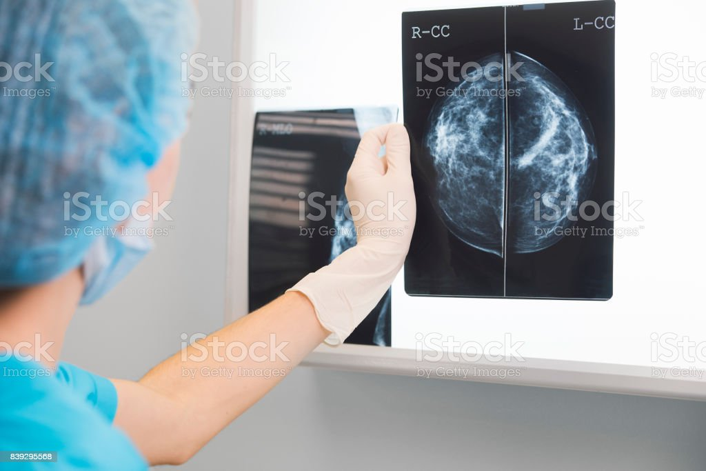 woman doctor or nurse in surgery outfit is holding a mammogram in front of x-ray illuminator stock photo