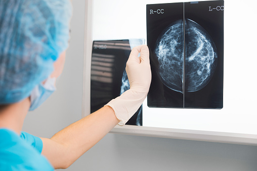 Woman Doctor Or Nurse In Surgery Outfit Is Holding A Mammogram In Front Of Xray Illuminator Stock Photo - Download Image Now