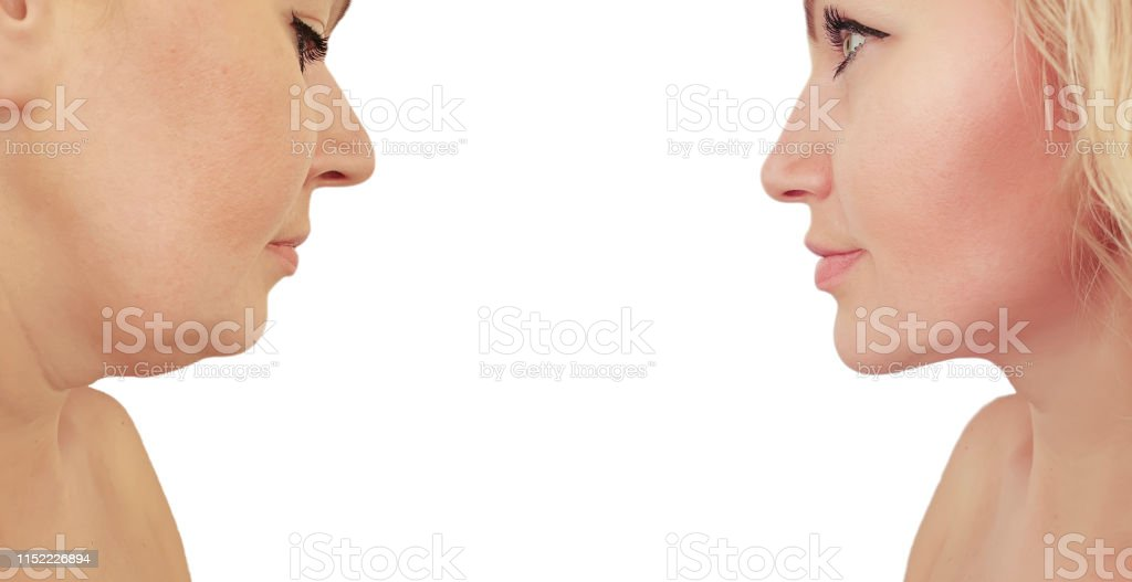 woman double chin before and after procedures effect woman double chin before and after procedures effect Adult Stock Photo