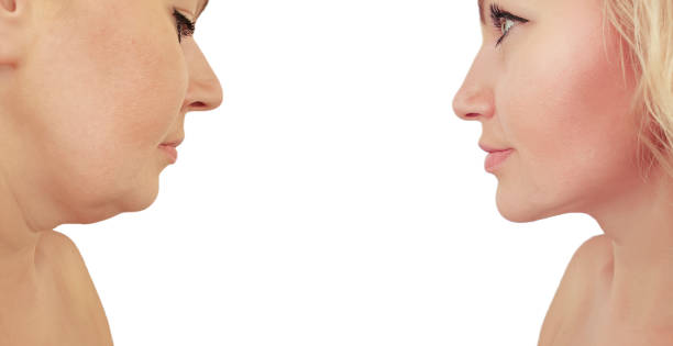 woman double chin before and after procedures effect woman double chin before and after procedures effect antiaging stock pictures, royalty-free photos & images
