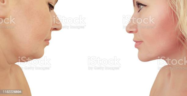 Woman Double Chin Before And After Procedures Effect Stock Photo - Download Image Now