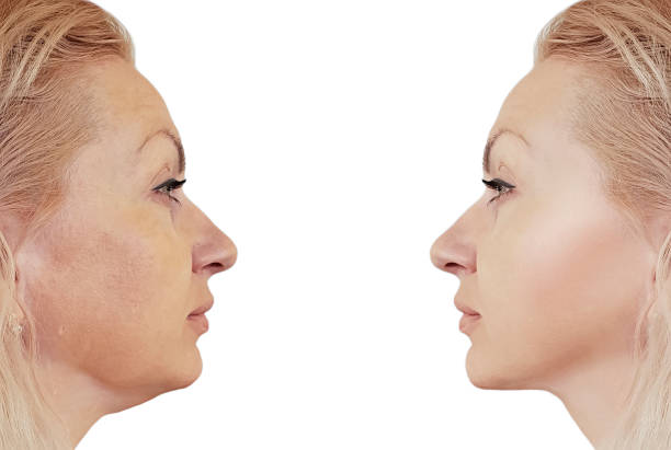 woman double chin before and after procedures, retouching woman double chin before and after procedures, retouching tighten stock pictures, royalty-free photos & images