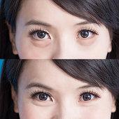 istock woman eye bags 868775346