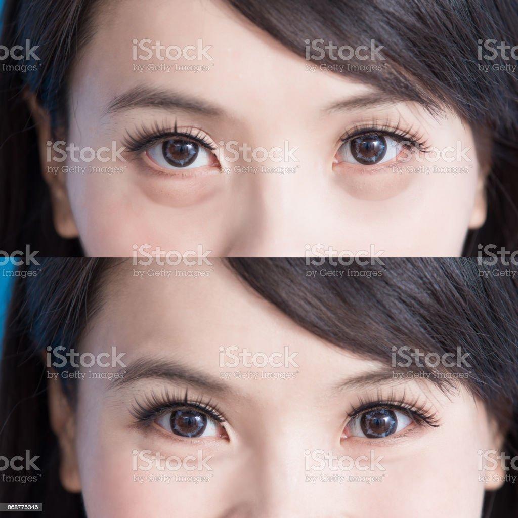 woman eye bags stock photo
