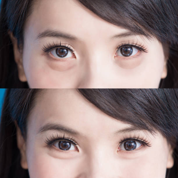 woman eye bags stock photo